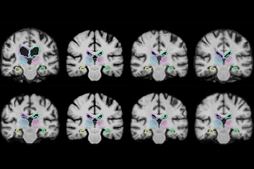 3D scans of brain analyzed by AI
